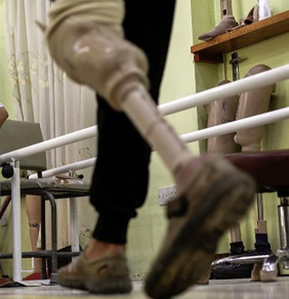 Prosthetic leg. (AP Photo/Bram Janssen)