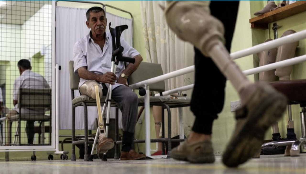 In this Wednesday, May 10, 2017 photo, a man watches another another patient practice walking on his prosthetic leg in the International Committee of the Red Cross prosthetics clinic in Irbil, Iraq. The fight to retake Mosul has left more than 12,000 civilians injured and for many that has meant the loss of a limb.