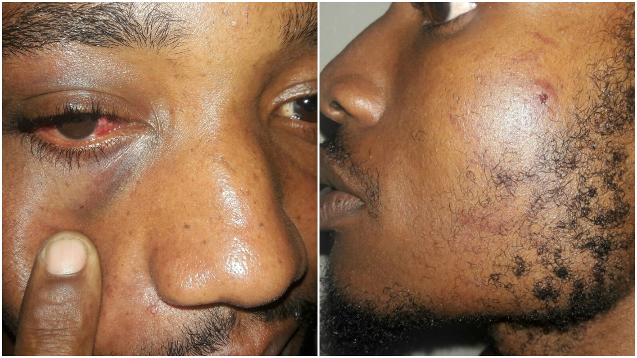 Photos showing some of the injuries sustained by the cousins - (left) Dario Stanton and (right) Romario Quintyne.