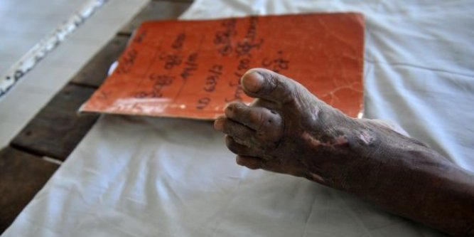 Illustration : Birmanie : la lutte contre une maladie oubliée. Crédit photo : Midi Libre