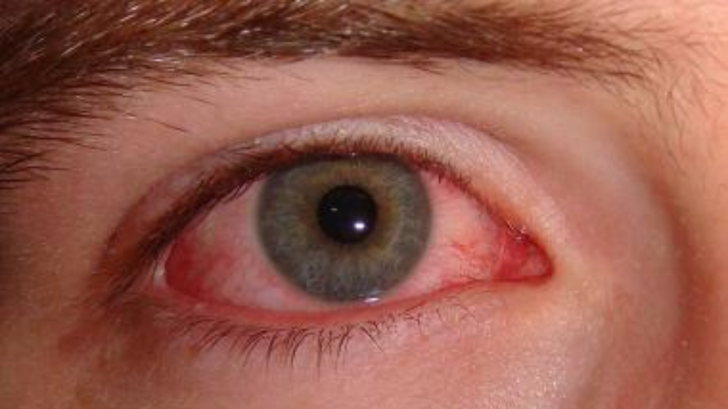Viral conjunctivitis also known as red eye or pink eye.