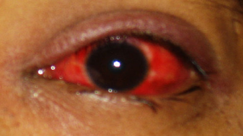 """St Jude's: Increase in """"red eye"""" cases in the south 
