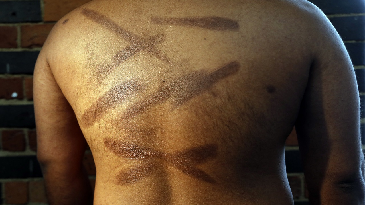 In this July 18, 2017, photo, a Sri Lankan man known as Witness #199 shows the scars on his back during an interview in London. He has tried to commit suicide multiple times because of the traumatic memories of his rape and torture.
