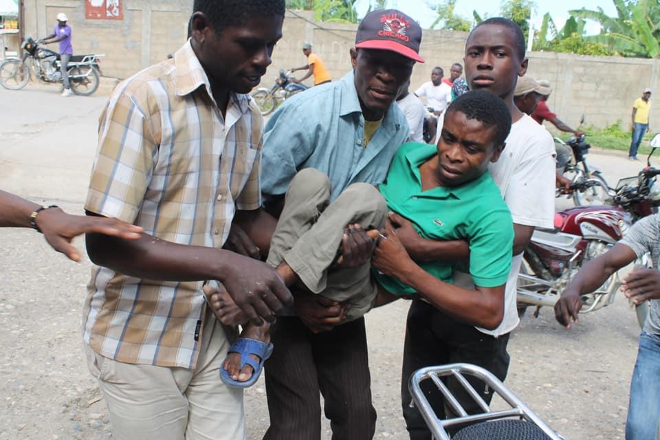 Un handicapé battu par un policier à Jérémie. Photo : John Cadafy Noel