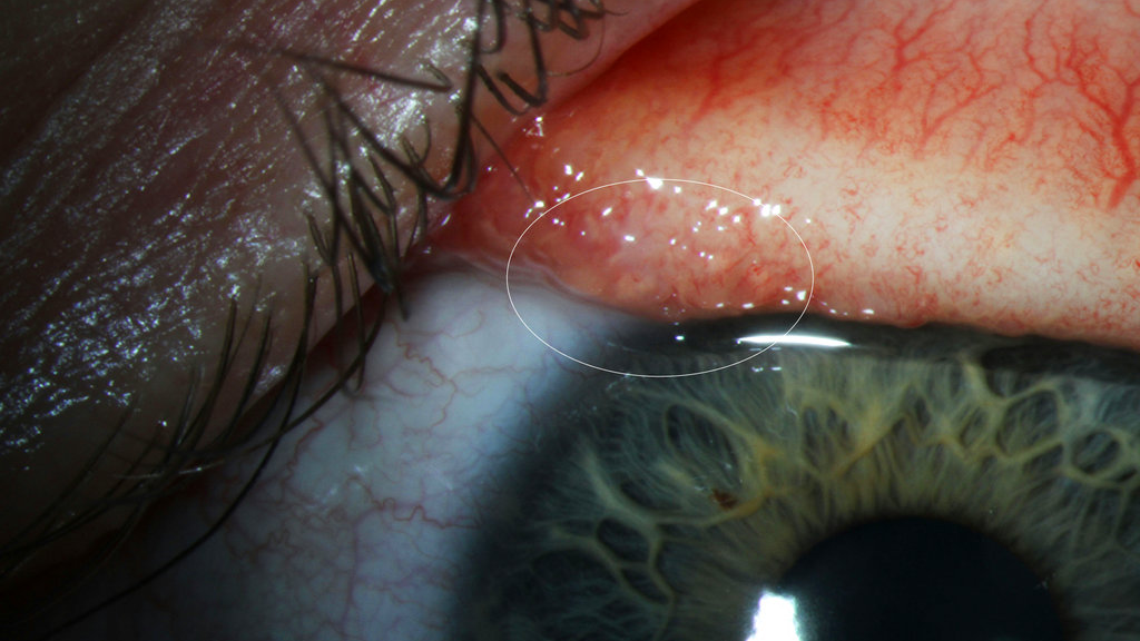 Rare Eye Worms Infected A Woman In The US