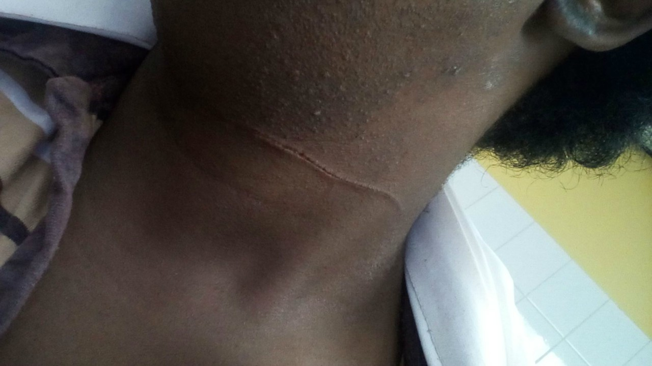 Photo of Alexa's neck after the incident.