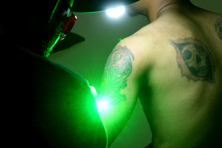Sandi Widodo travaille sur un client musulman qui souhaite effacer ses tatouages, le 18 avril 2018 à Jakarta, en Indonésie