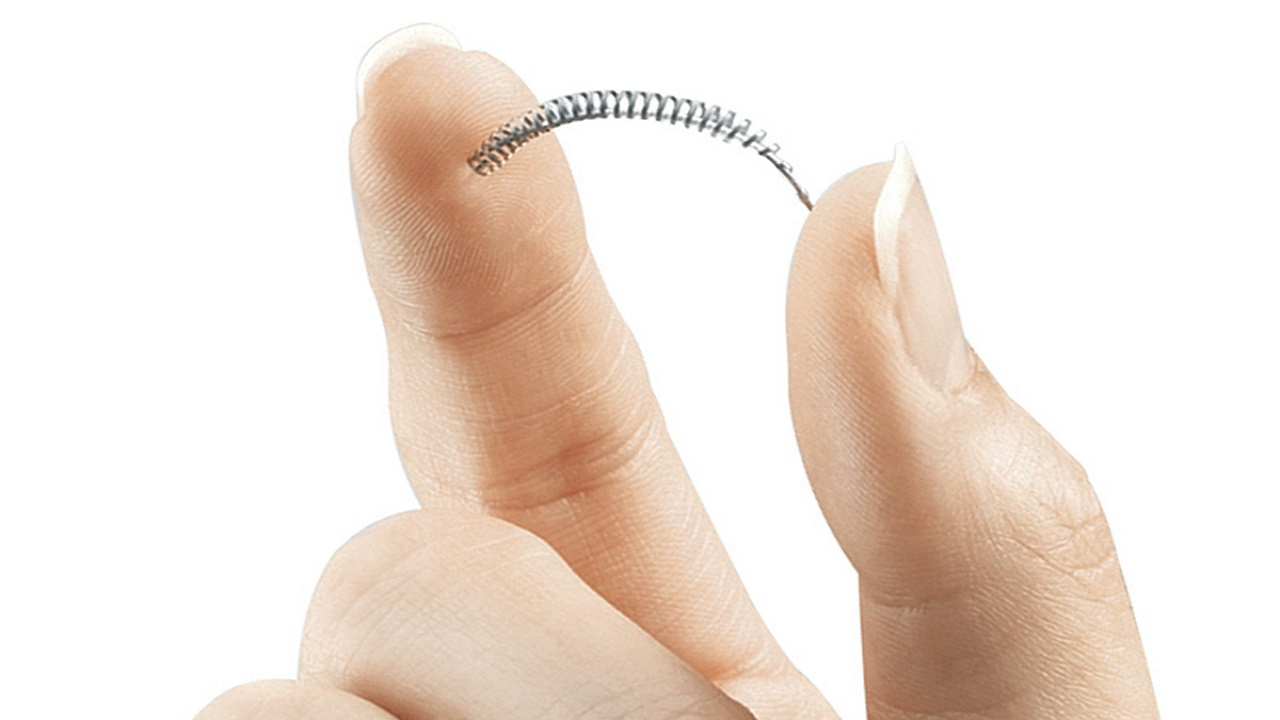 This image provided by Bayer Healthcare Pharmaceuticals shows the birth control implant Essure.