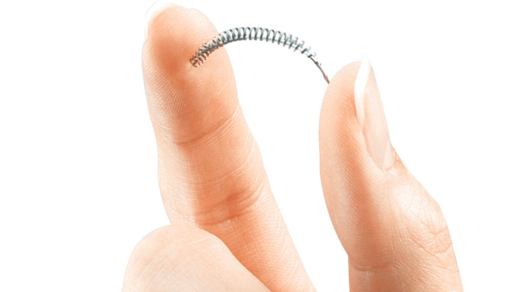 This image provided by Bayer Healthcare Pharmaceuticals shows the birth control implant Essure. On Friday, July 20, 2018, the maker of the permanent contraceptive implant subject to thousands of injury reports from women and repeated safety restrictions by U.S. regulators says it will stop selling the device at the end of the year due to weak sales. (Bayer Healthcare Pharmaceuticals via AP)