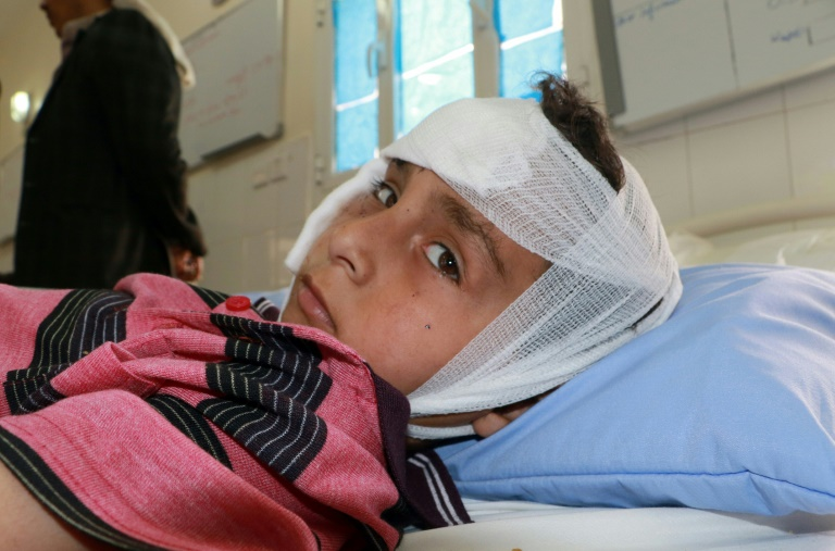 Un enfant yéménite sur le marché de Dahyan près du bus détruit par une frappe attribuée à la coalition militaire dirigée par les Saoudiens et qui a tué 29 enfants.