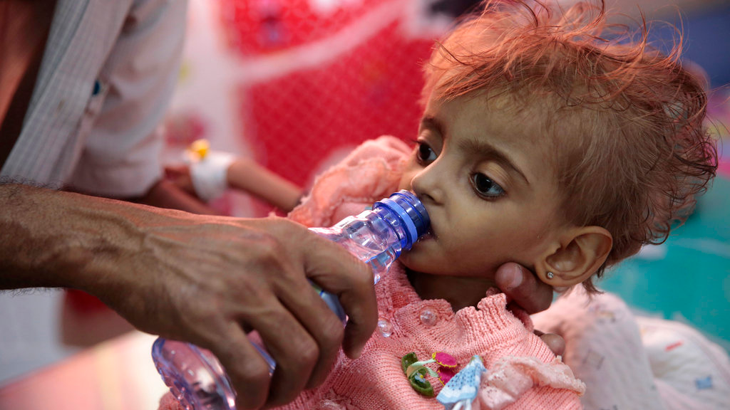 In this Thursday, Sept. 27, 2018 photo, a father gives water to his malnourished daughter at a feeding center in a hospital in Hodeida, Yemen.  (AP Photo/Hani Mohammed)