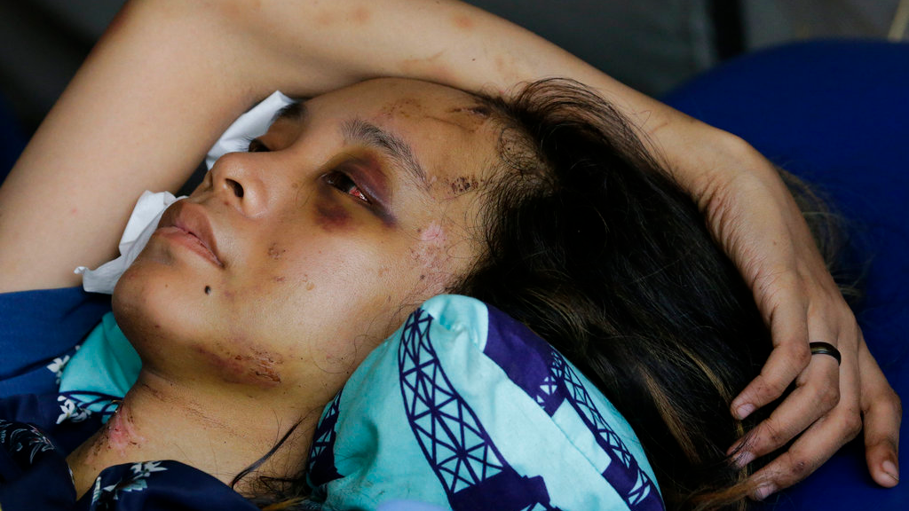 Anisa Cornelia rests as she lies inside a medical tent after being injured in the earthquake and tsunami that hit Indonesia last week. All she could think of was the love of her life, the man she was supposed to marry this month. (AP Photo/Aaron Favila)