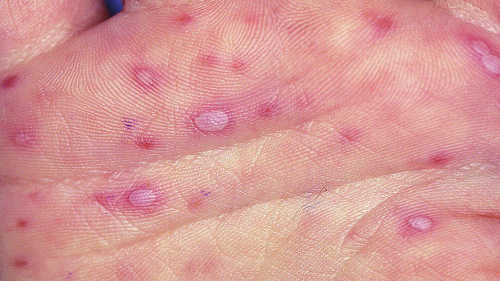 Hand lesions. Photo: Merck Manuals.