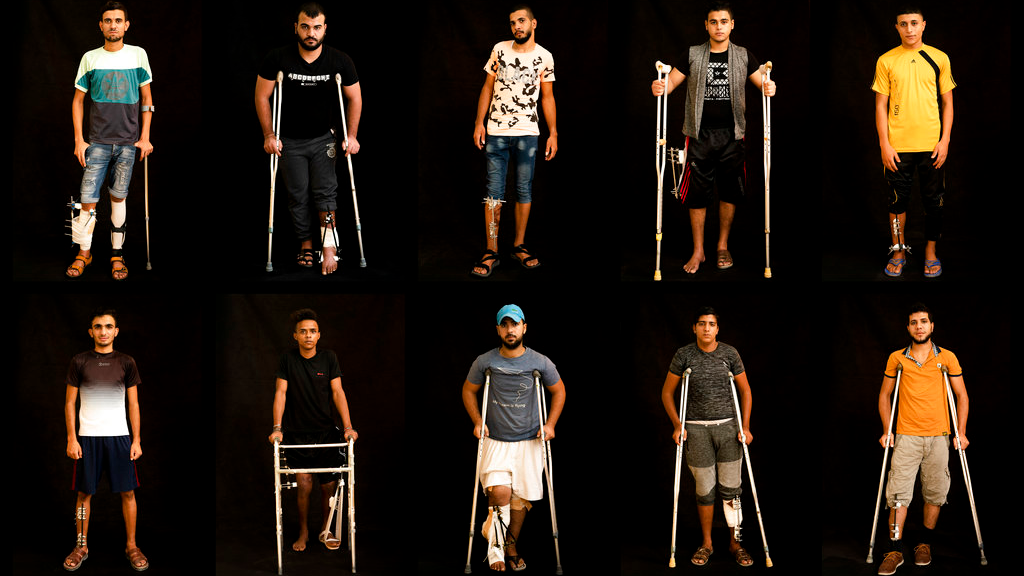 In this combination of 10 photos taken on Sept. 19, 2018, Palestinians shot in the legs during demonstrations at the Gaza strip's border with Israel pose as they await treatment at a Gaza City clinic run by MSF (Doctors Without Borders). (AP Photo/Felipe Dana)