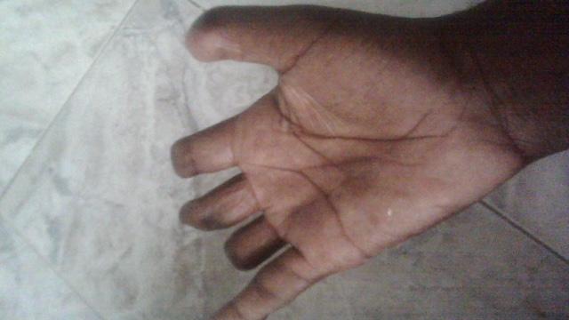 Photo : Illustration d'une main amputée de plusieurs doigts - Crédit Photo : lecalme.info