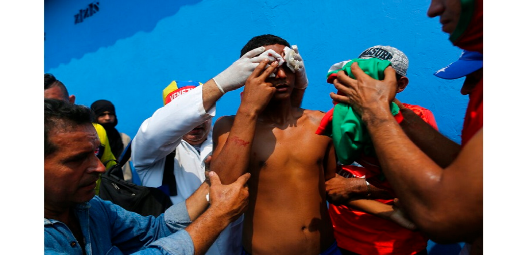 A demonstrators is given first aid after he was injured in the face during clashes with the Bolivarian National Guard in Urena, Venezuela, near the border with Colombia, Saturday, Feb. 23, 2019.