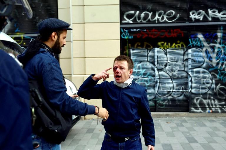 Laurent Theron blessé à l'oeil droit par une grenade de désencerclement lors d'une manifestation contre la loi Travail à Paris le 15 septembre 2016