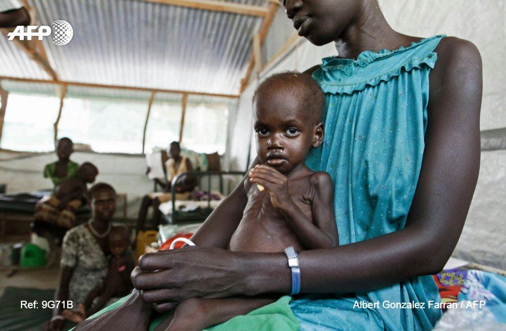 Un enfant souffrant de malnutrition dans une clinique de l'ONG Médecins sans Frontières (MSF) à Lankien, dans l'Etat de Jonglei, au Soudan du Sud, le 8 avril 2016 afp.com - ALBERT GONZALEZ FARRAN