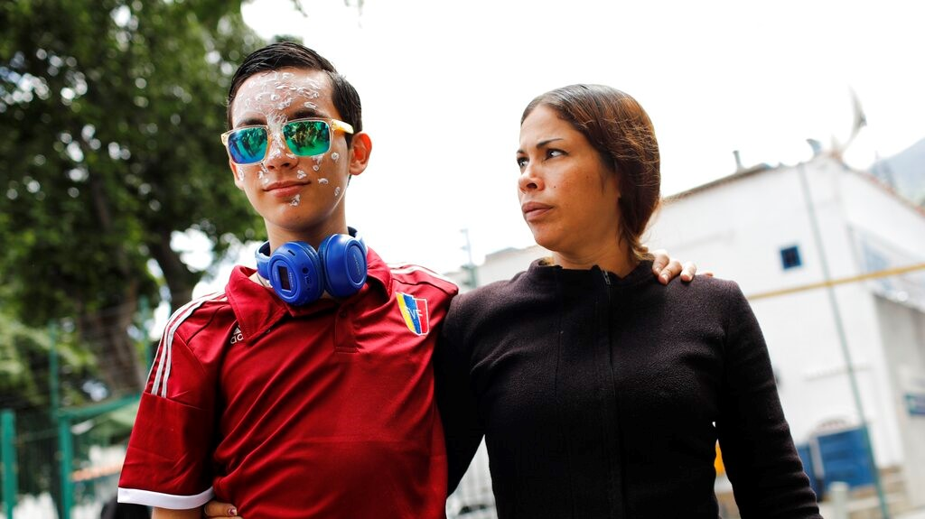 16-year-old Rufo Chacon, wearing reflective sunglasses, faces towards his mother Adriana Parada as they are met by a group of reporters outside the offices of Foro Penal, a Venezuelan human rights organization, in Caracas, Venezuela, Friday, July 19, 2019. (AP Photo/Ariana Cubillos)