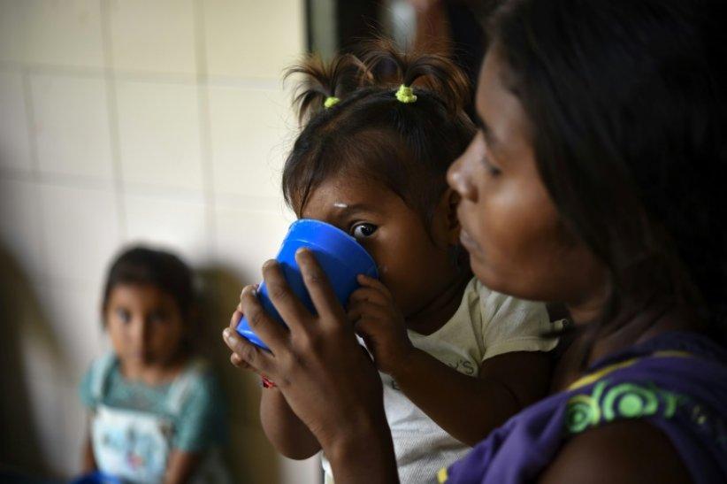 Une enfant malnutrie au Venezuela, le 5 juillet 2019