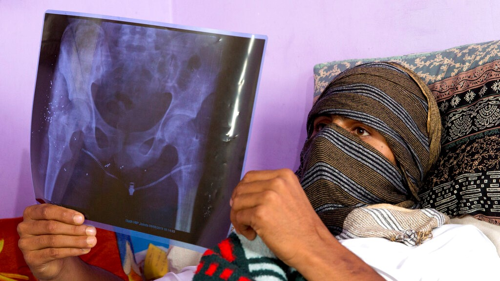 A Kashmiri boy, who was injured in a protest last week, holds up an X-Ray showing pellet injuries in his leg, as he recovers at his home in Srinagar, Indian controlled Kashmir, Saturday, Aug. 17, 2019. (AP Photo/Dar Yasin)
