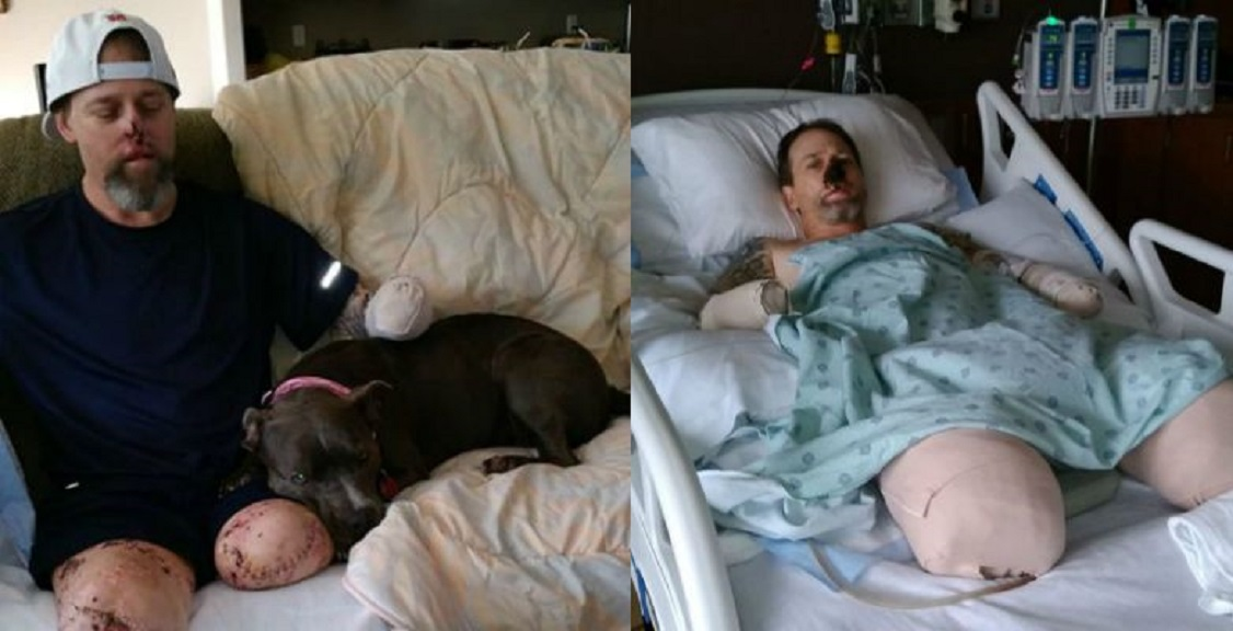 Man nearly dies from dog germ; researchers find genetic link