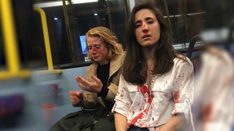 Trois ados jugés pour l'agression d'un couple de lesbiennes