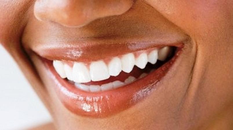 New year, same teeth: How's your Jamaican smile? | Loop News