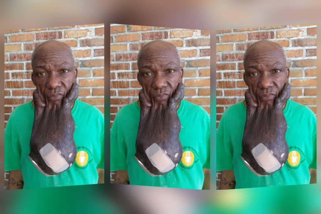 Le citoyen Neï Moïse, agé de 58 ans, victime d'une complication médicale. Photo: Stéphanie Serelus. Collage: Loop Haïti.