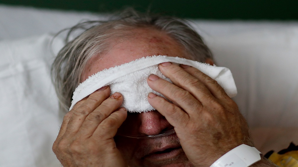 In this Friday, February 9, 2018 file photo, a 73-year-old man places a cold compress on his forehead while battling the flu at a hospital in Georgia. (AP Photo/David Goldman)