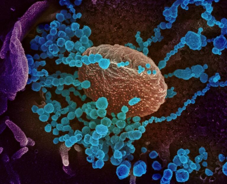 Image microscopique du SARS-CoV-2 (en bleu) émergeant de la surface de cellules cultivées en laboratoire afp.com - Handout