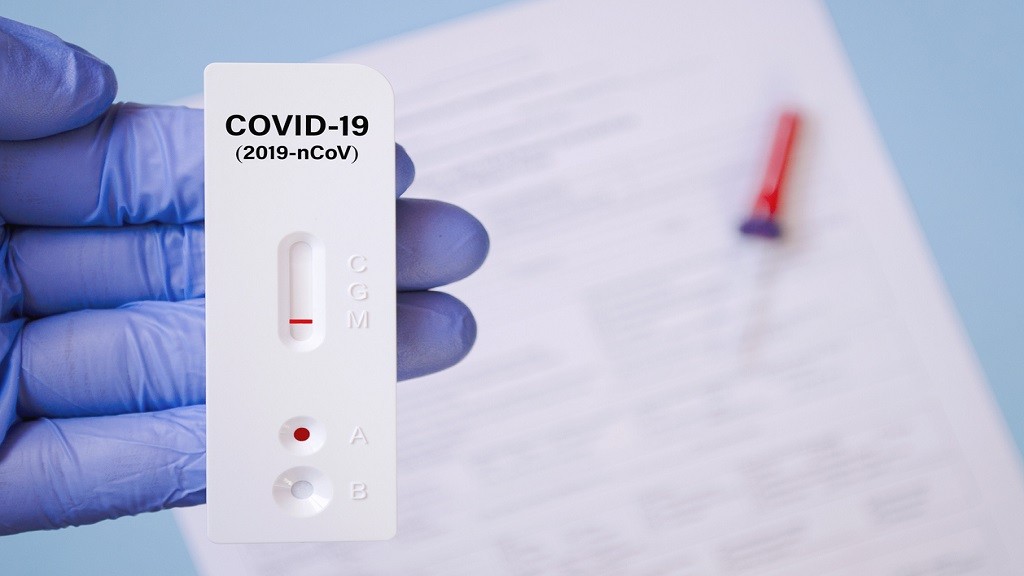 iStock photo of lab performing rapid diagnostic test for antibodies to detect presence of antigens.