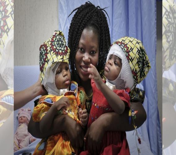 Ermine Nzotto, mother of twin girls Ervina and Prefina Bangalo, smiles following a successful surgery. (Photos: AP/Riccardo De Luca, Bambino Gesù Paediatric Hospital)