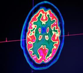 Des médecins ont constaté chez des malades graves du Covid-19 des symptômes neurologiques allant de la perte d'odorat à des douleurs nerveuses, et jusqu'à des crises convulsives et des accidents vasculaire cérébraux (AVC).