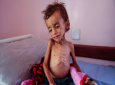 FILE - In this Oct. 1, 2018, photo, a malnourished boy sits on a hospital bed at the Aslam Health Center, Hajjah, Yemen. An estimated 85,000 children under age 5 may have died of hunger and disease since the outbreak of Yemen's civil war in 2015, an international aid group said Wednesday, Nov. 21, 2018. (AP Photo/Hani Mohammed, File)