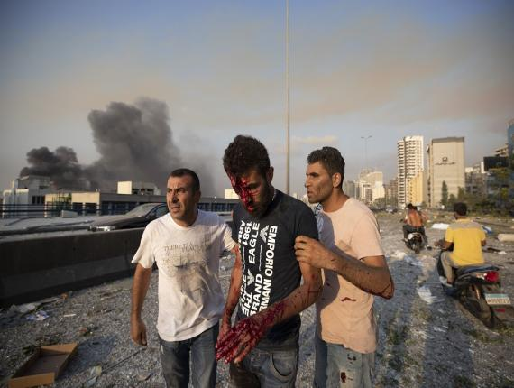 People help a man who was wounded in a massive explosion in Beirut, Lebanon, Tuesday. (AP Photo/Hassan Ammar)