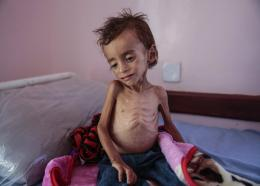 In this Oct. 1, 2018 file photo, a malnourished boy sits on a hospital bed at the Aslam Health Center, Hajjah, Yemen. Houthi rebels in Yemen have blocked half of the United Nations' aid delivery programs in the war-torn country — a strong-arm tactic to force the agency to give them greater control over the massive humanitarian campaign, along with a cut of billions of dollars in foreign assistance, according to aid officials and internal documents obtained by AP. (AP Photo/Hani Mohammed, File)